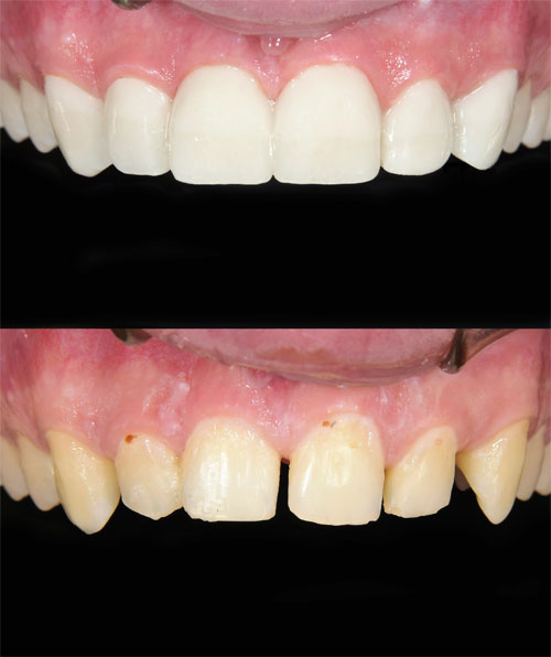 dental veneers for gap before and after